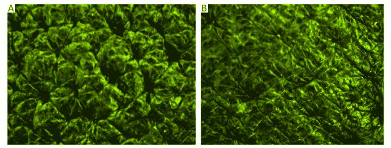 Le moringa contre le vieillissement des cellules